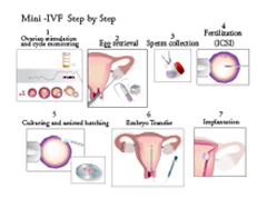 Mini IVF Procedural Overview New Hope Fertilty Center