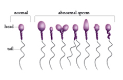 sperm cell pictures New Hope Fertilty Center