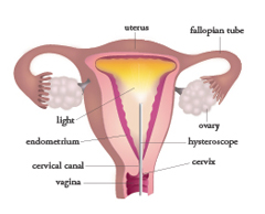 hysteroscopy New Hope Fertilty Center